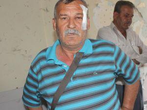 Hdp'ye Saldırıda Yaralanan Şahıs Olayı Anlattı