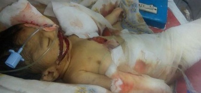 Fareler 10 günlük bebeği öldürdü