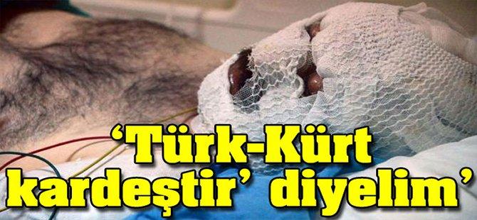 Türk-Kürt Kardeştir' Diyelim