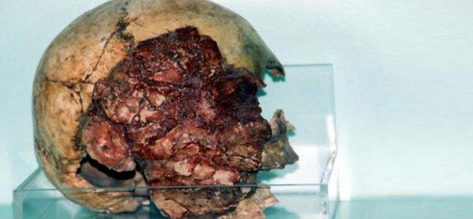 Müzedeki 7 Bin 200 Yıllık Kafatasına Büyük İlgi