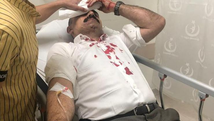 Sendika başkanı Bayraktar'a muştalı saldırı!