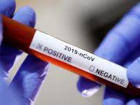 Türkiye'nin ilk koronavirüs raporu yayınlandı!