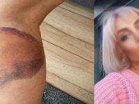 Tuzak kurup eski eşine beyzbol sopasıyla saldırdı